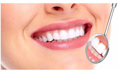 Sada na domácí bělení zubů včetně instrukcí