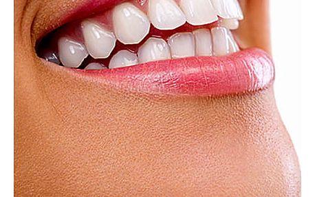 Neperoxidové bělení zubů přístrojem Whiten led v prestižním studiu v Plzni.