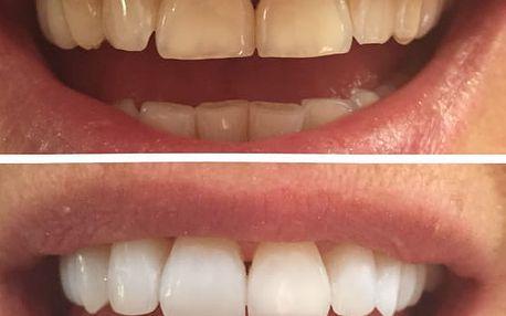 Neperoxidové bělení zubů přístrojem WHITEN LED