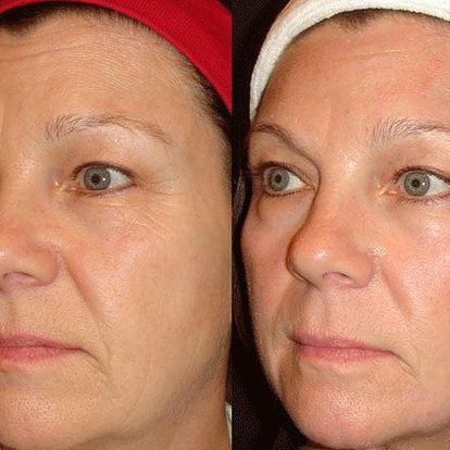 3D lifting Hifu Ultherapy vybrané partie či obličeje a krku