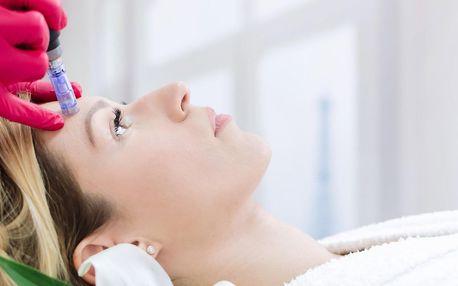 Mikrojehličková mezoterapie: 1 nebo 4 ošetření