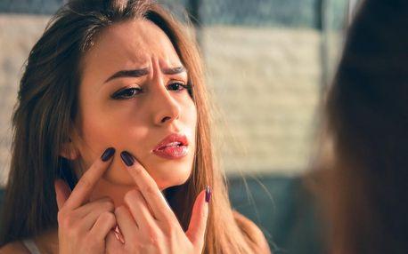 Kosmetické ošetření aknózní pleti