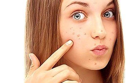 Zvyšte sebevědomí sobě nebo svým dospívajícím dětem a darujte jim léčebnou kúru pro zdravou pleť.