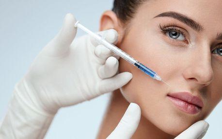 Odstranění mimických vrásek botoxem