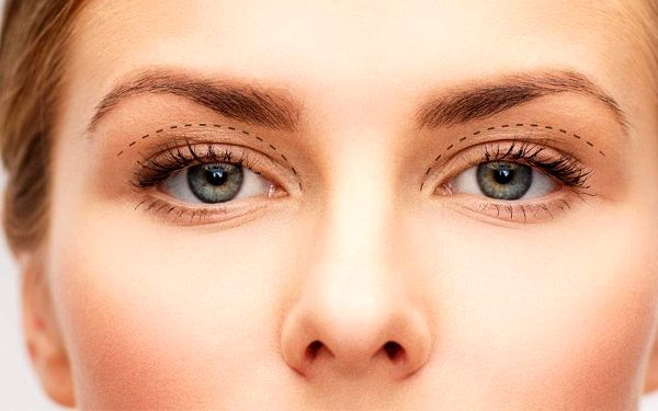 Odstranění nadbytečné kůže z očních víček
