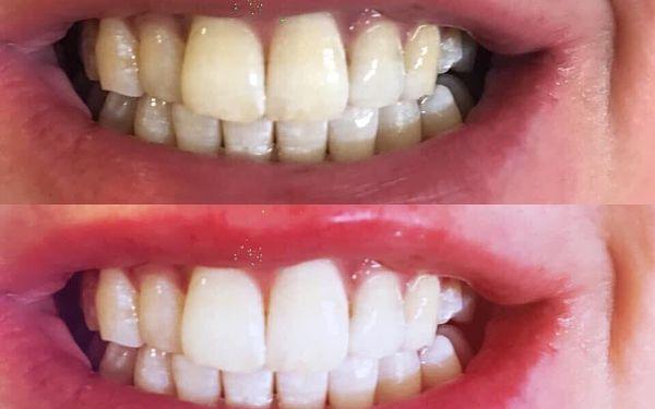 Bělení zubů3