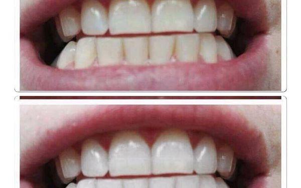 Bělení zubů4