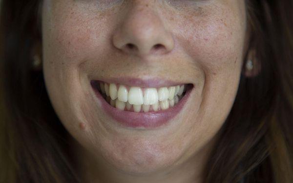 1x bělení zubů4