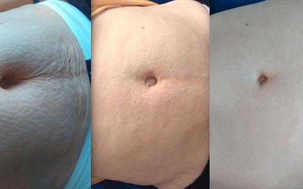 Ošetření břicha5