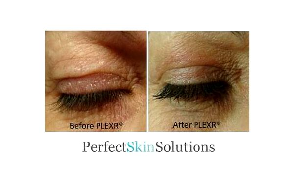 Redukce nadbytečné kůže na horních nebo dolních víčkách2