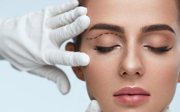 Redukce nadbytečné kůže na horních nebo dolních víčkách3