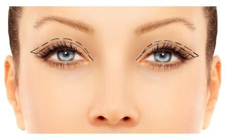 Redukce nadbytečné kůže z očních víček